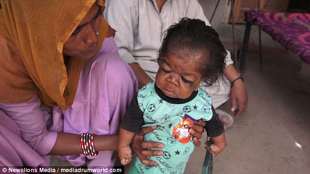 MYSTERIOUS: 23 YEARS-OLD INDIAN MAN TRAPPED IN BABY'S BODY